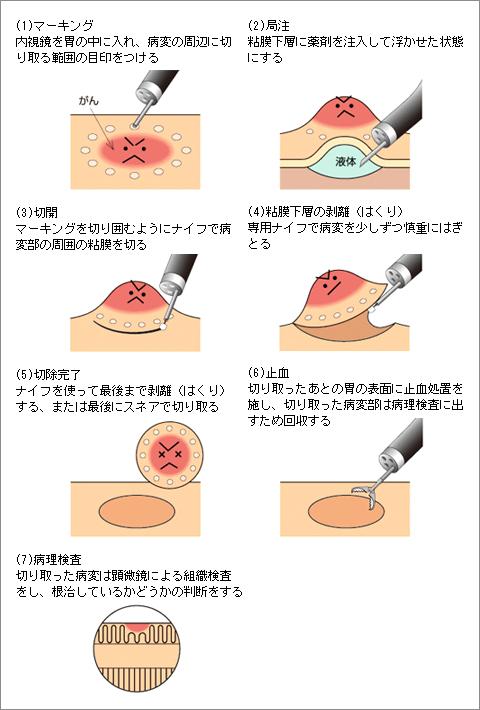 内視鏡的粘膜下層はく離術(ESD)